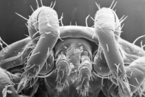 Six Strategies to Get Rid of Dust Mites